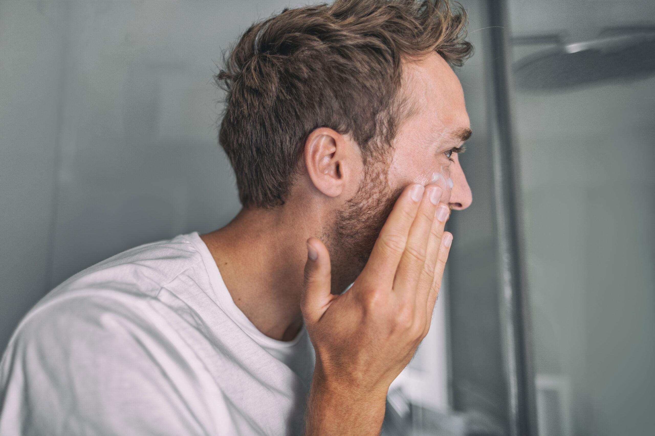 tips for aa redusere fjerne kviser menn kvinner gutter jenter acne