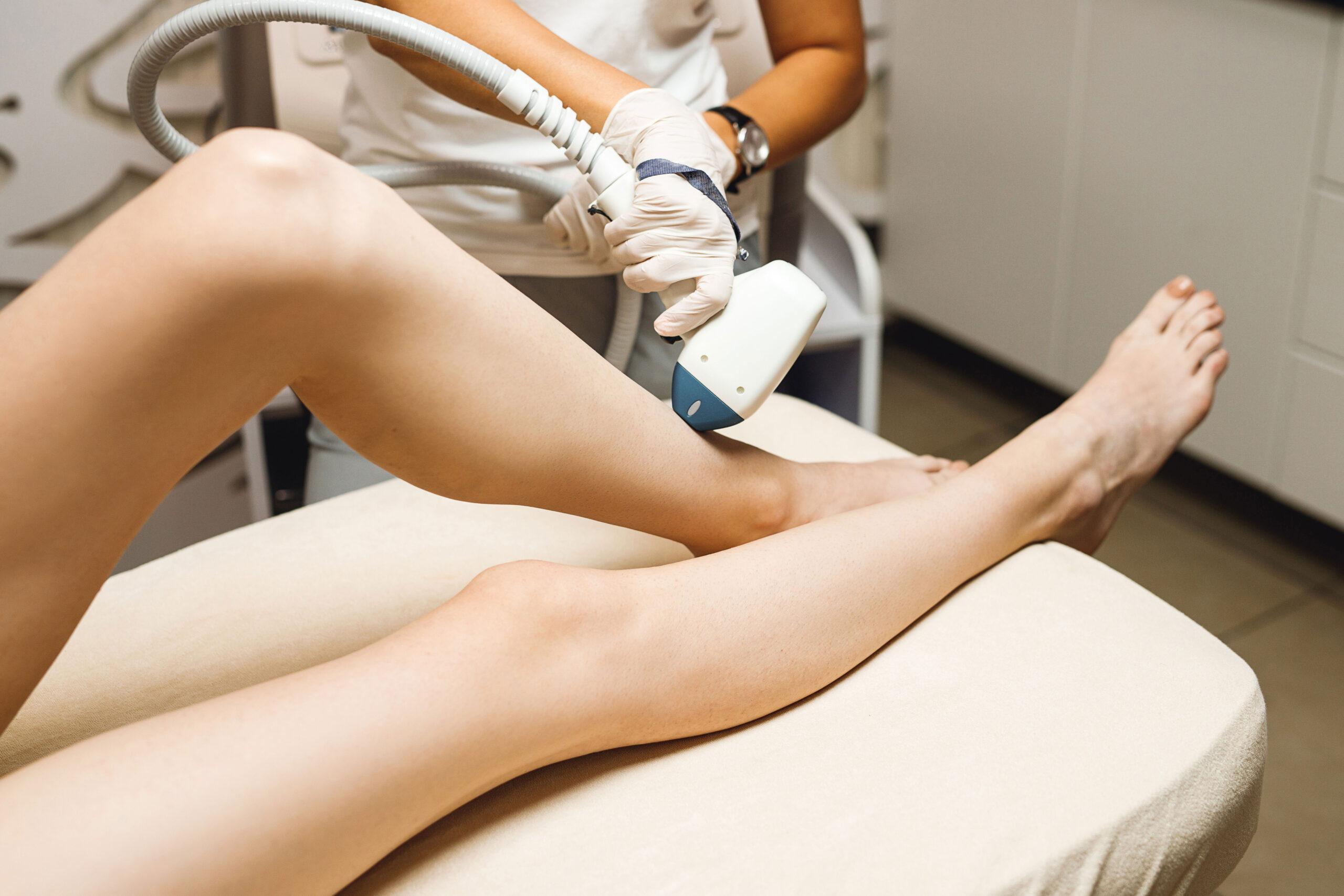 laserbehandling haarfjerning tips for aa fjerne haar kropp